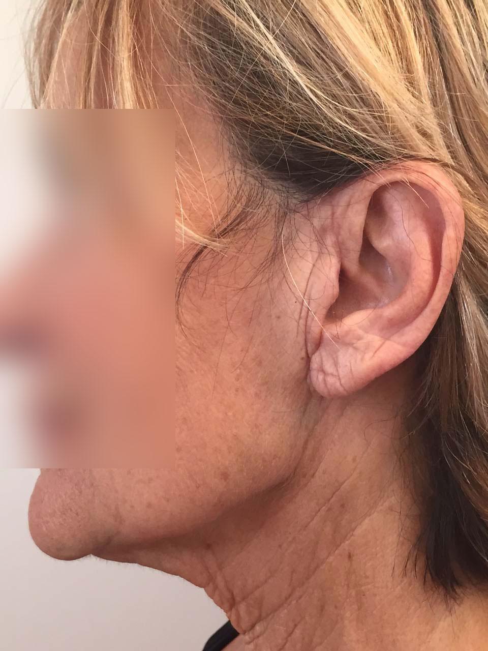 CAS 2 - Aspect postopératoire. Cicatrice dissimulée invisible.