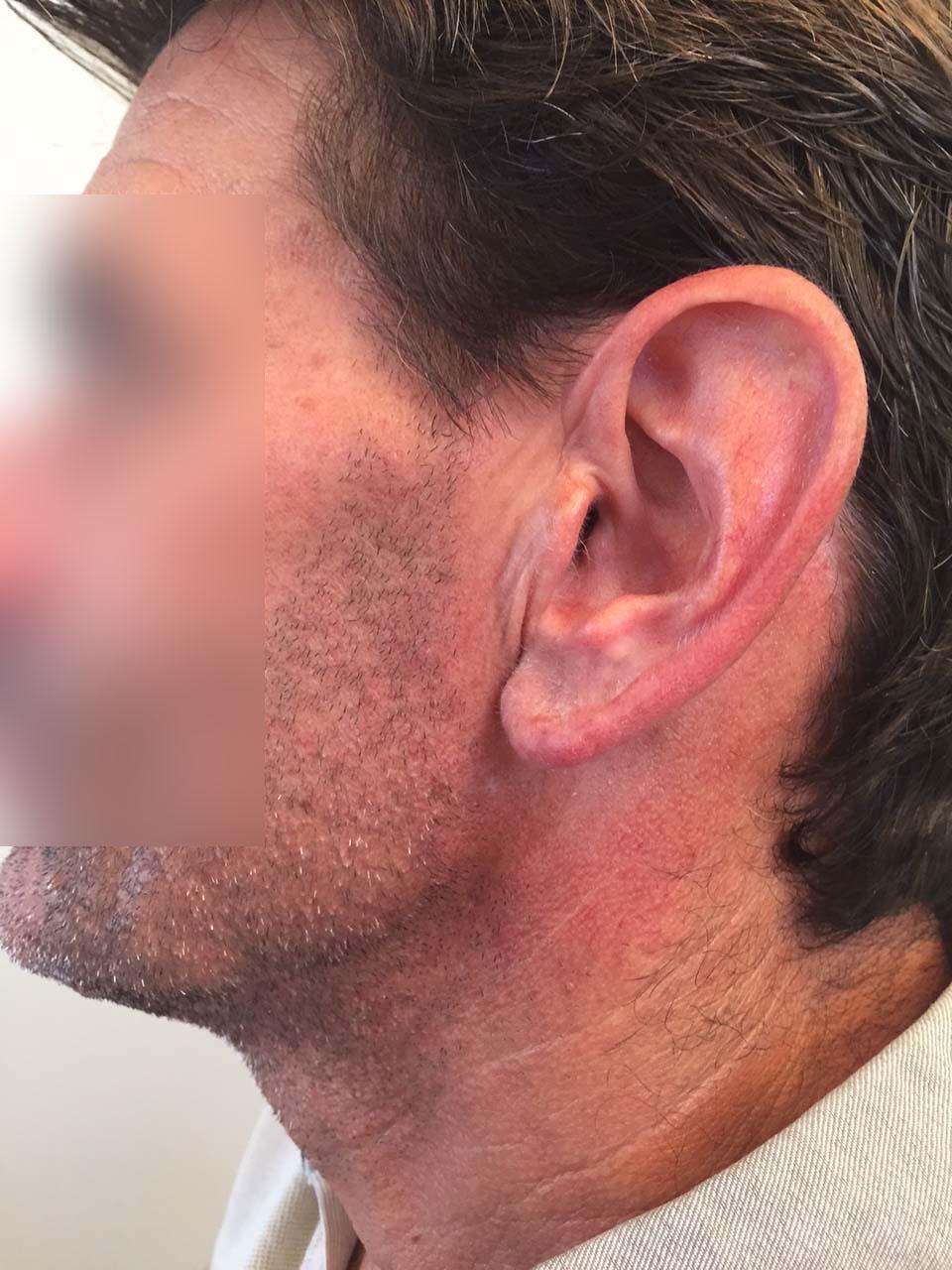 CAS 3 - Aspect postopératoire. Cicatrice dissimulée invisible.