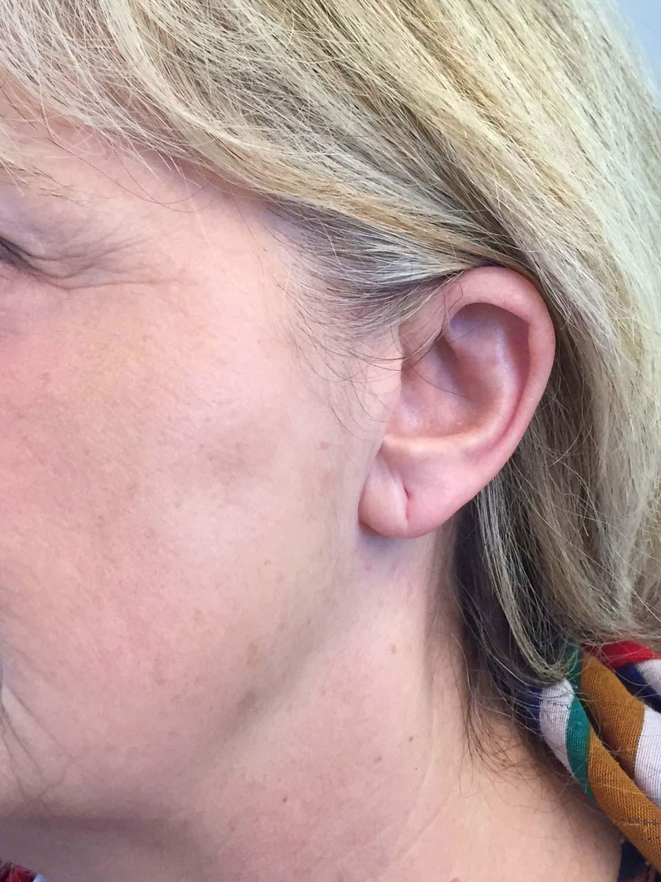 CAS 4 - Aspect postopératoire. Cicatrice dissimulée invisible.