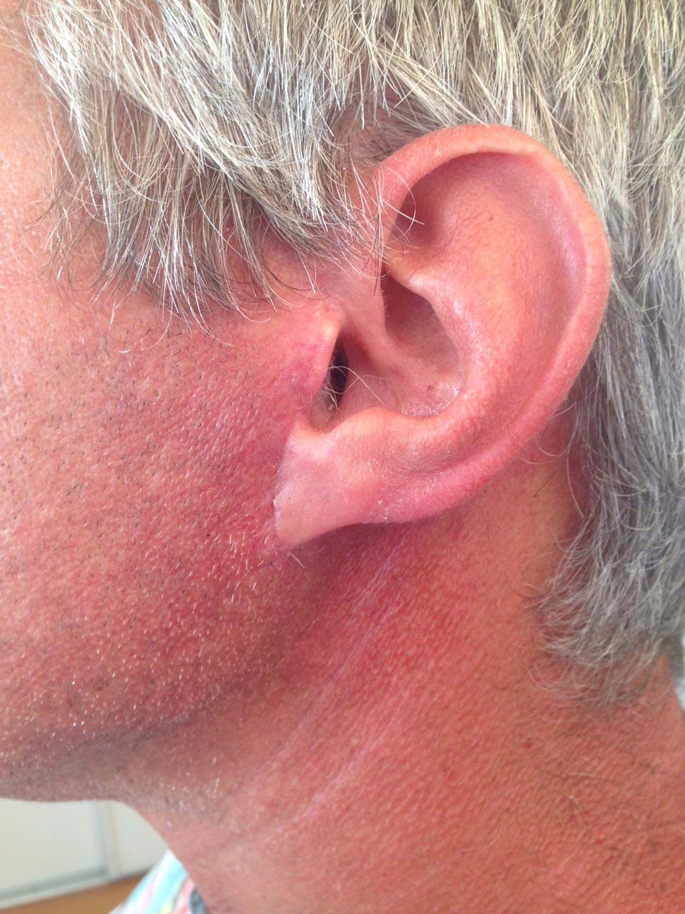 CAS 5 - Aspect postopératoire. Cicatrice dissimulée invisible.